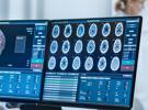 让数据和信号传输更安全,数字隔离技术在医疗设备中的应用实践